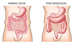 functionarea normala a colonului)
